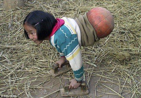 niña que usaba un balón para caminar
